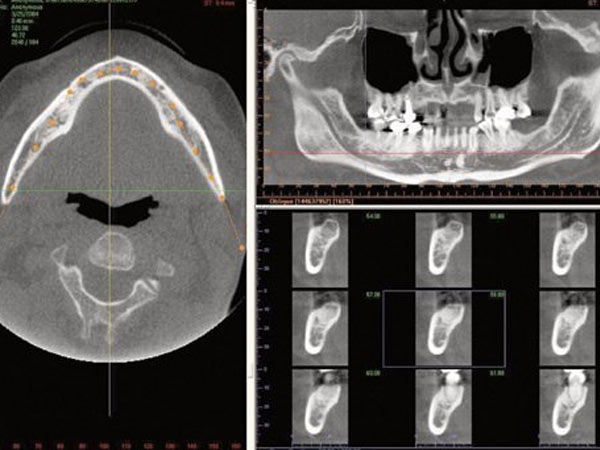 Ct Scans In Dentistry Cascades Center For Dental Health