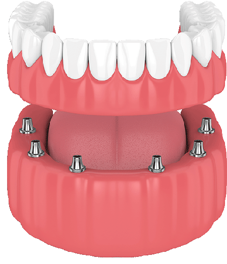 Dental Full Bridge