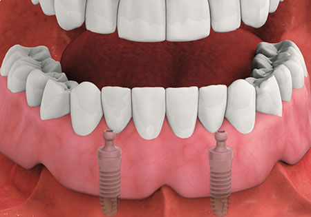 Implant-Supported Overdentures