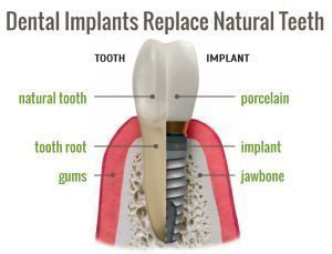 Dental Implants Replace with Natural Teeth