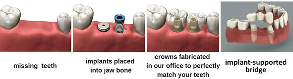 Multiple Implants and Implant-Supported Bridges
